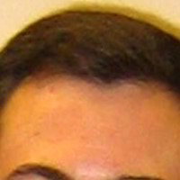 Forehead Skin Picture - July 2006