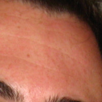 Forehead Skin Picture - January 2007
