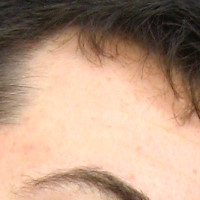 Forehead Skin Picture - March 2007